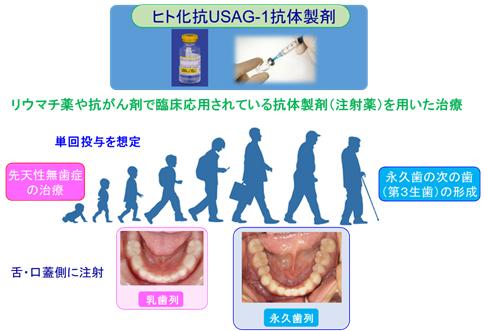 ヒト化抗USAG-1抗体製薬剤
